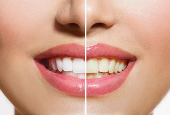 Dişlerin renklerinin değişmesi hastalık mı?